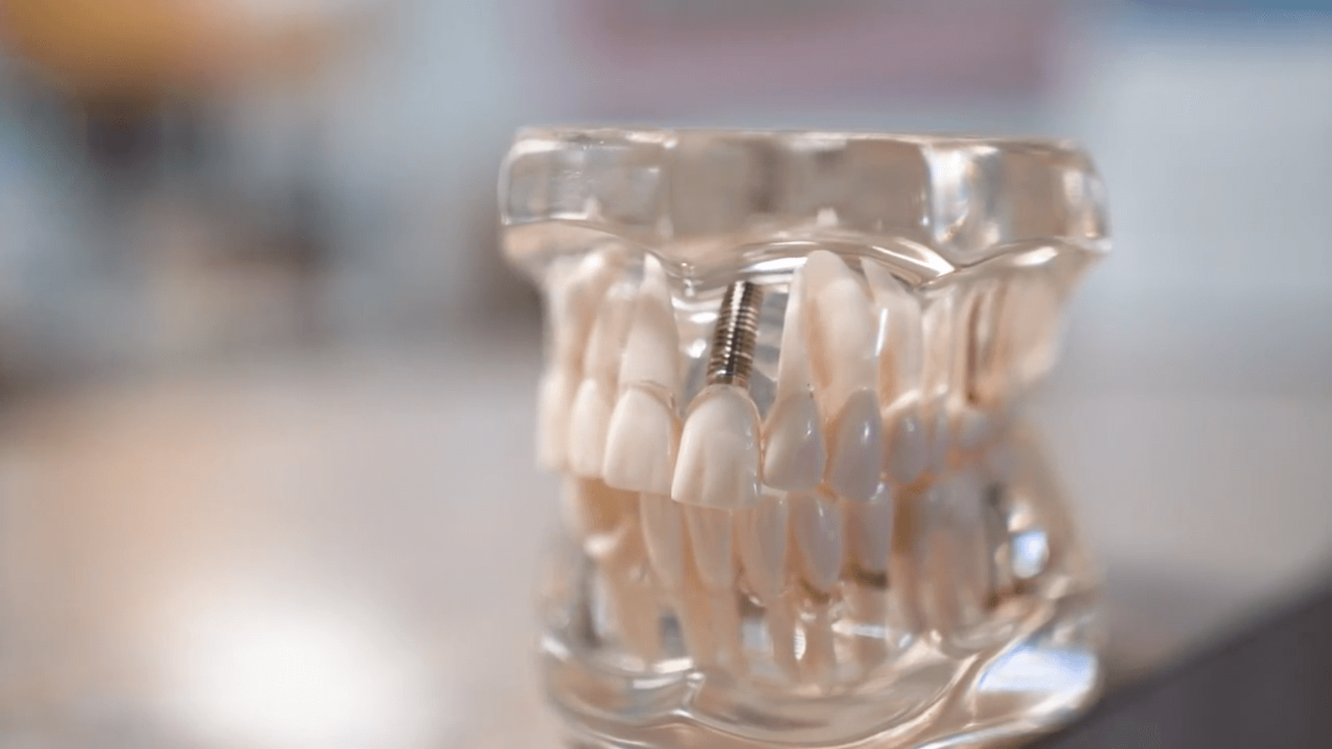 dental implants from cosmetic dentist Dr. Hagstrom - La Mesa
